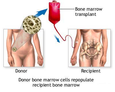 bone-marrow-transplant