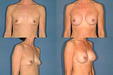 breast-surgery1