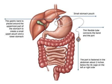 laparoscopic sleeve gastrectomy surgery in india