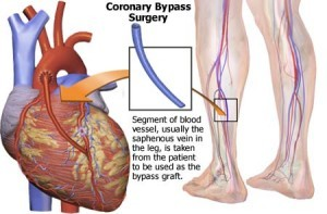 heart-bypass-surgery-in-india-300x197