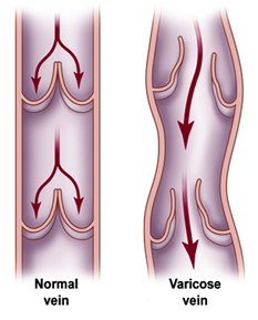 vein stripping surgery in india