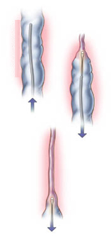 vein ablation surgery in india
