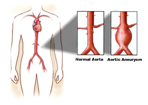 aortic-aneurysm-repair1