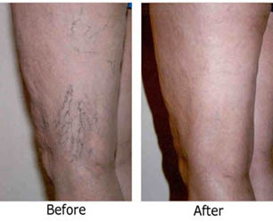 laser-spider-vein-treatment1