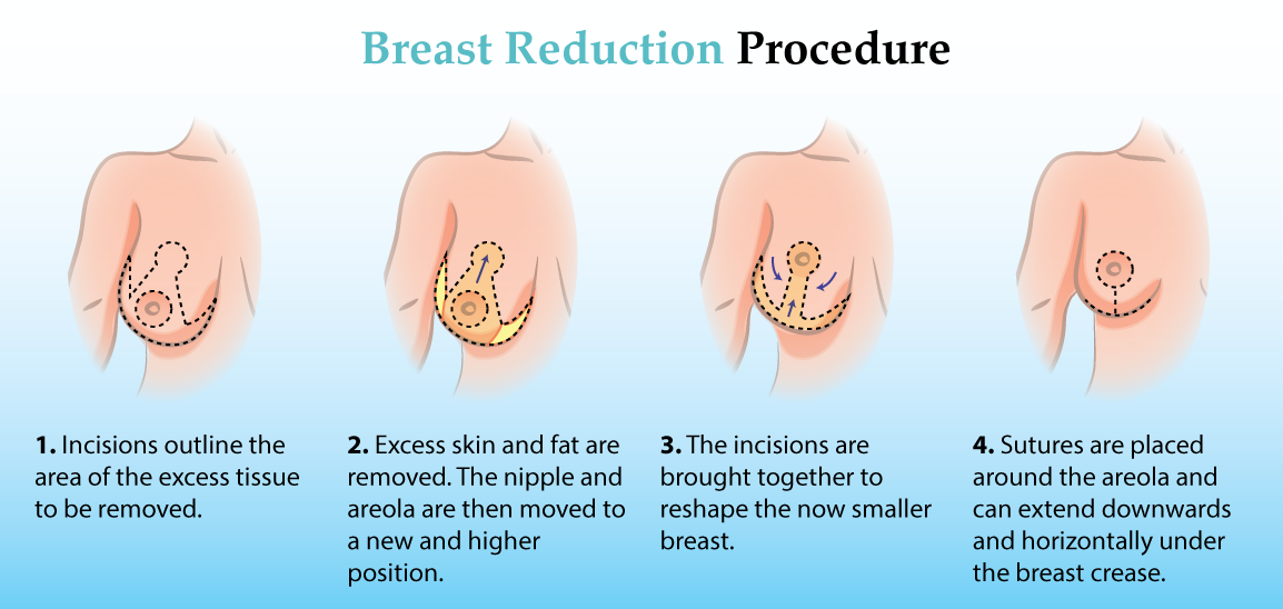 Breast Reduction Cost & Candidacy - Consumer Guide