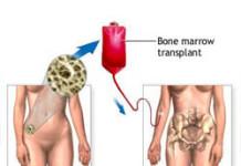 bonemarrow
