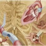 Thoracic Spine Surgery