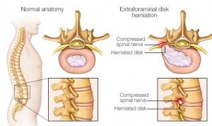 what is herinated disc