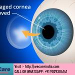 Cornea Transplant India