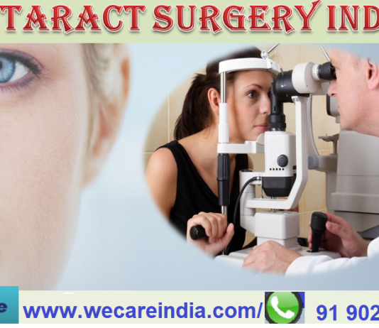 cataract surgery in India