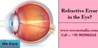 refractive error treatment