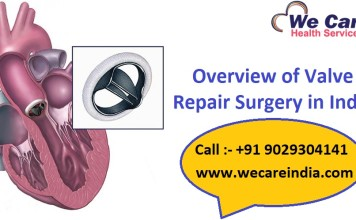 Valve Repair Surgery in India