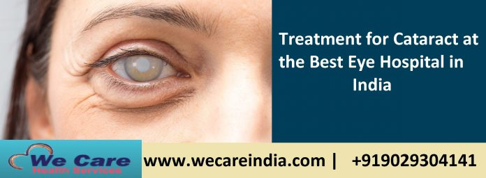 Cataract eye treatment in India